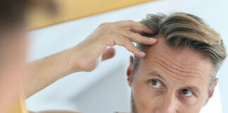 ile kosztuje przeszczep włosów